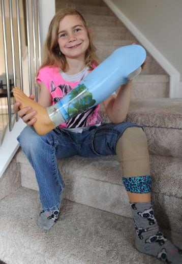 leg prothesis woman