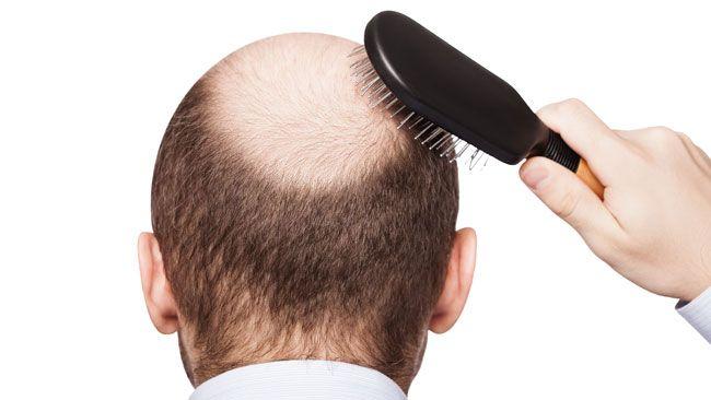 Baldness pattern linked to greater prostate cancer risk: Study (Fotolia)