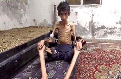 Emaciated Syrian boy