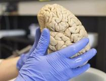 A researcher holds a human brain