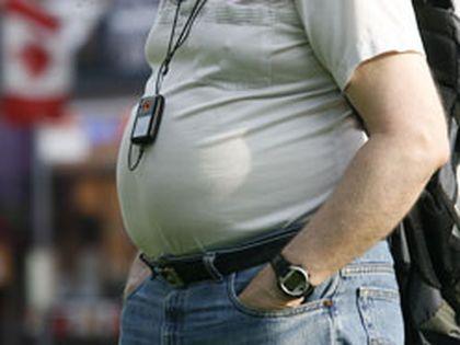 Obesity has tripled among Canadians aged 20 to 39. Ottawa Sun file photo