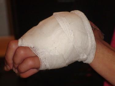 Brenda Sims may lose her left hand after being bitten by a stray cat. (ROSS ROMANIUK/Winnipeg Sun)