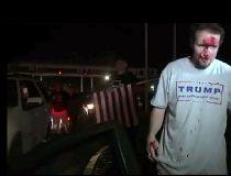Trump supporter