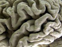 human brain with Alzheimer's disease